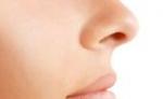 玻尿酸注射隆鼻術